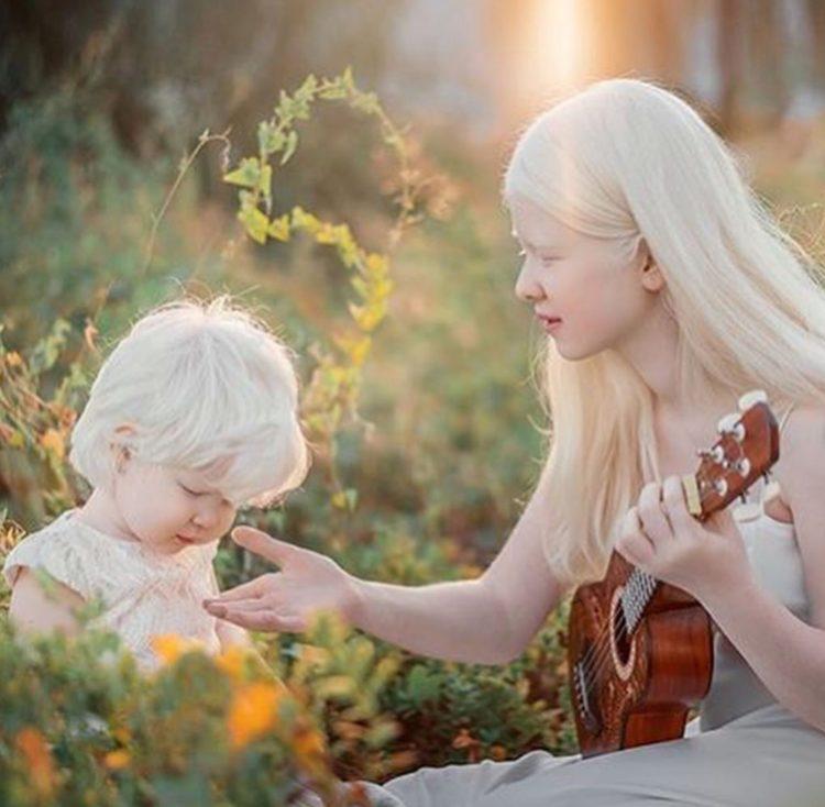 Le meravigliose sorelle albine
